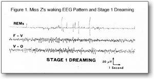 EEG pattern