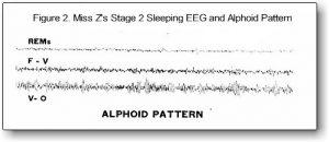 EEG pattern #2